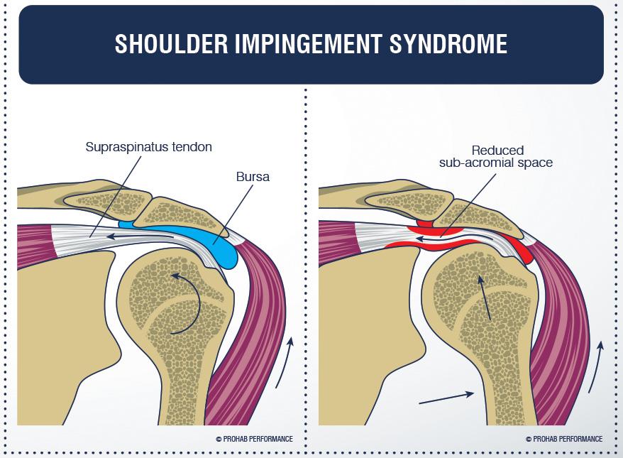 Shoulder Impingement Syndrome   Full Function Rehab